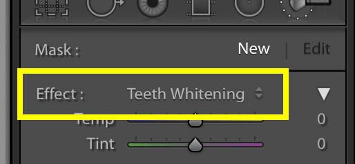 Teeth Whiten1